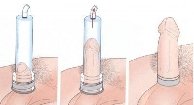 Вакуумный насос своими руками - описание и инструкция